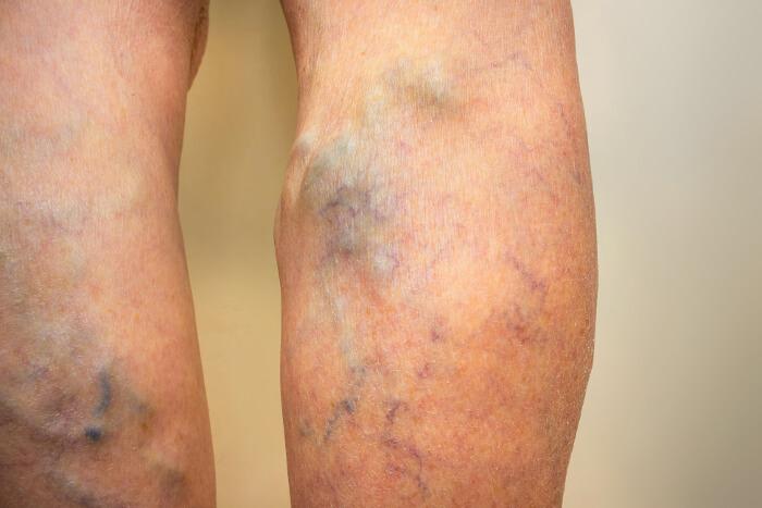 kŕčové žily -varixy